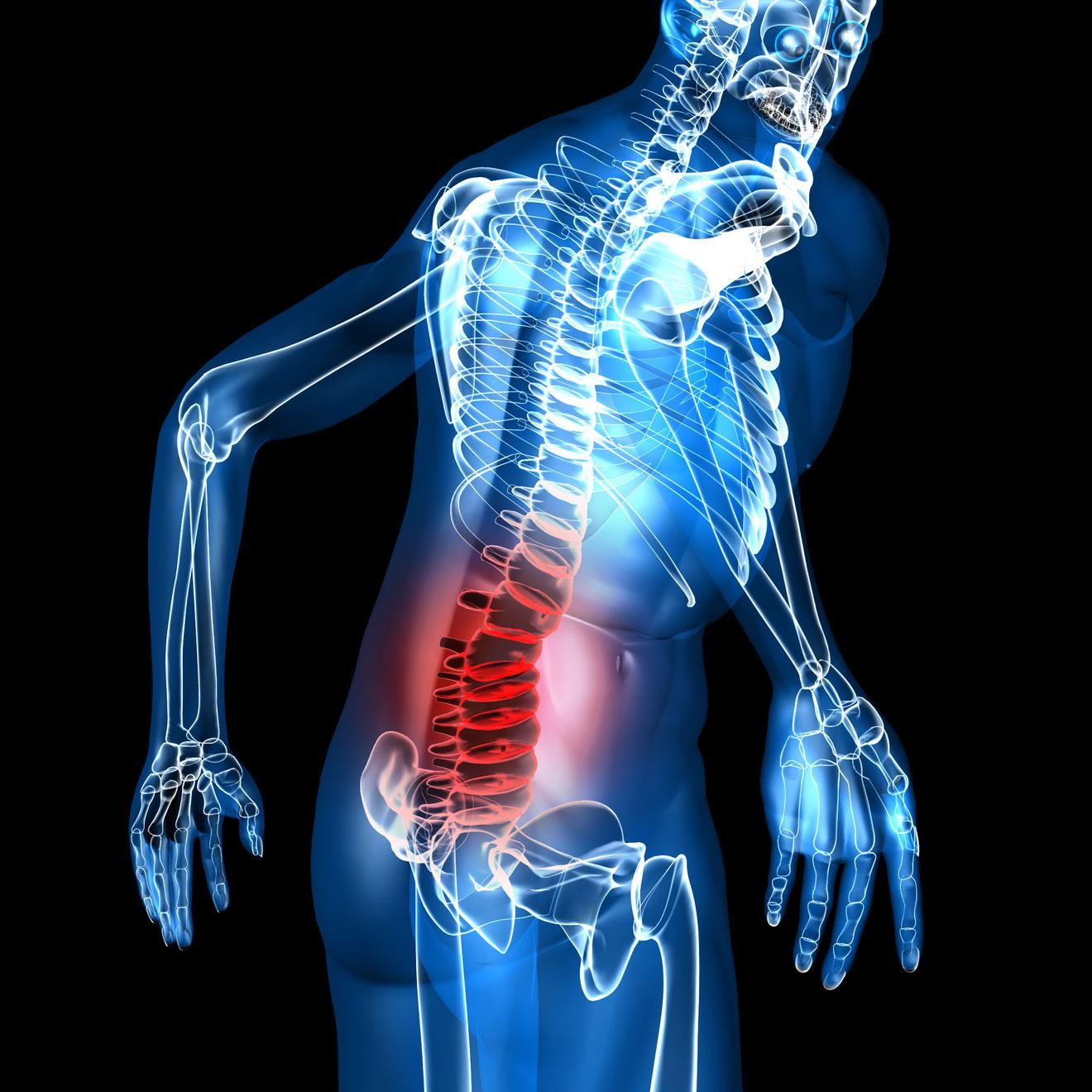 Discopathie : Quels sont les traitements possibles afin de soigner une arthrose des disques intervertébraux.